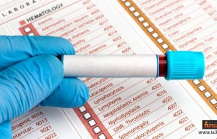 كيف تقرأ التحاليل الطبية على موقع يوسبيتال؟